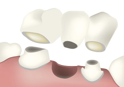 Illustration of a dental bridge at Watermark Dentistry in Normandy Park, WA