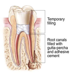 Rendering of a tooth after root canal therapy at Watermark Dentistry in Normandy Park, WA