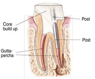 Rendering of a healthy tooth after root canal therapy at Watermark Dentistry in Normandy Park, WA