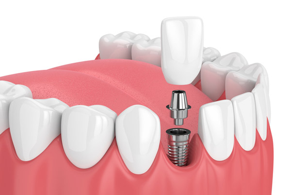 Rendering of a dental implant. Learn more about dental implant restorations at Watermark Dentistry in Normandy Park, WA