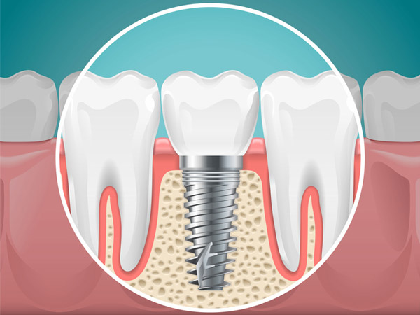 Diagram of a tooth replaced with a dental implant from Watermark Dentistry in Normandy Park, WA