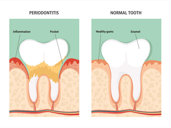 Diagram of periodontitis and a healthy tooth from Watermark Dentistry in Normandy Park, WA