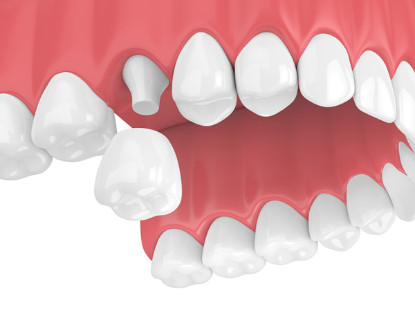 Rendering of a jaw with a porcelain dental crown at Watermark Dentistry in Normandy Park, WA