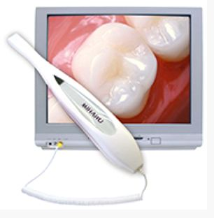 An intraoral camera at Watermark Dentistry in Normandy Park, WA
