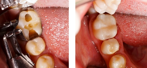 Before and after composite tooth-colored fillings at Watermark Dentistry in Normandy Park, WA