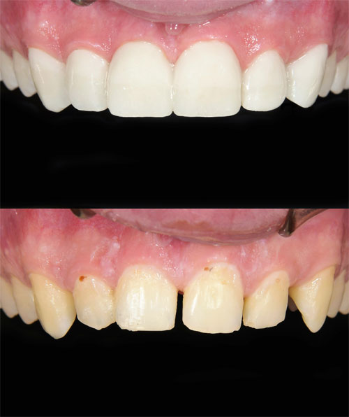 Before and after picture of veneers from Watermark Dentistry in Normandy Park, WA