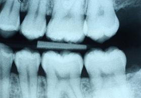 X-ray done at Watermark Dentistry in Normandy Park, WA
